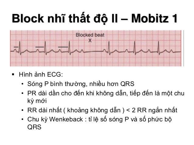 Block nhĩ thất độ II – Mobitz 1  Hình ảnh ECG: • Sóng P bình thường, nhiều hơn QRS • PR dài dần cho đến khi không dẫn, ti...