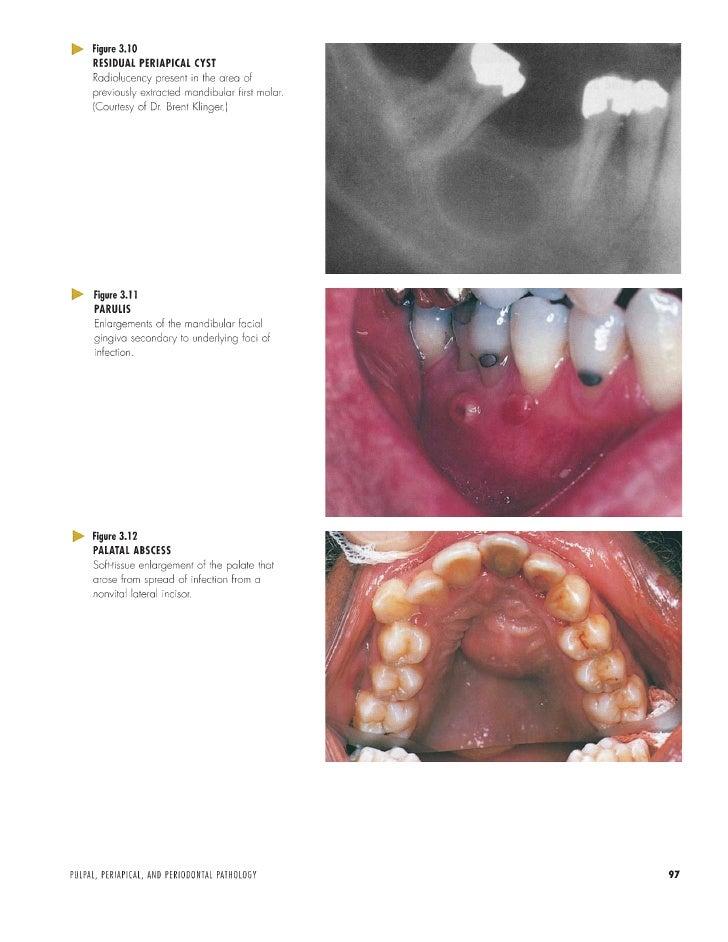 color atlas of pathology pdf