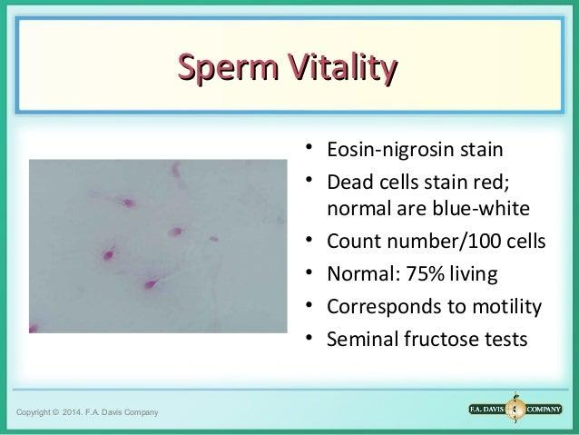 Dead sperm stain