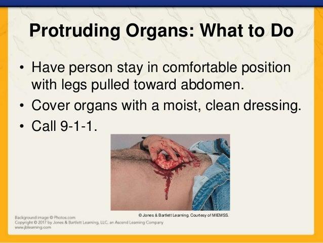 Ch13 presentation chest_abdominal_pelvic_injuries