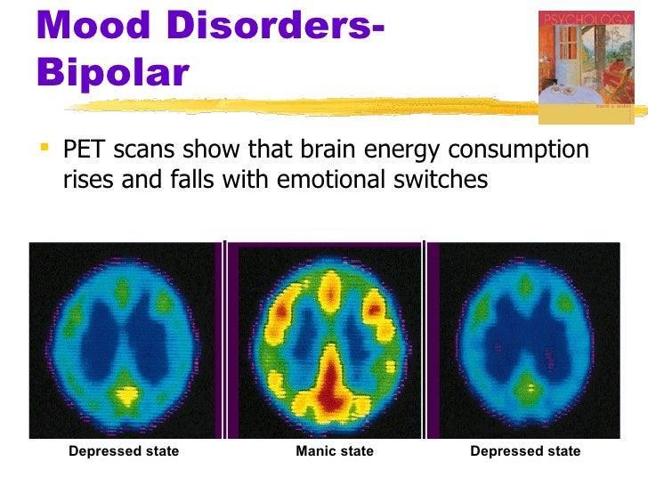 Bipolar Disorder-