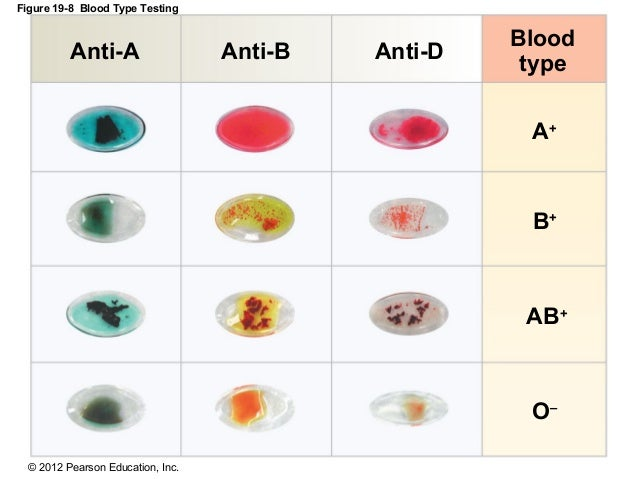 how to tell what blood type you are without test