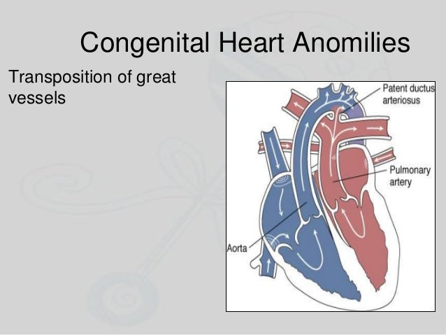 Congenital Heart Anomilies Transposition of great vessels