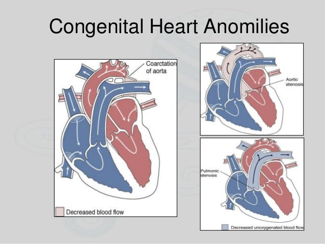 Congenital Heart Anomilies