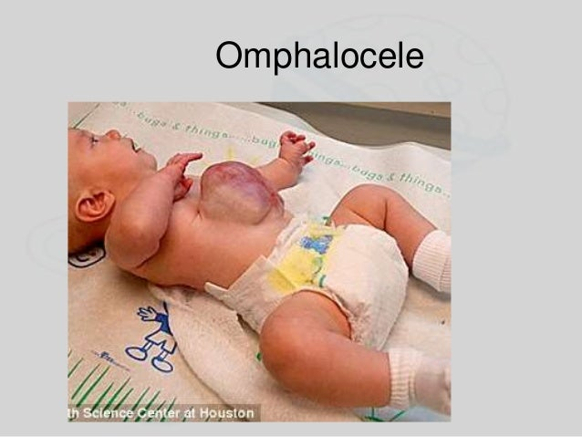 Assessment Assess the newborn immediately after birth Normal respiratory rate is 40–60 per minute – Ventilate as necessary...