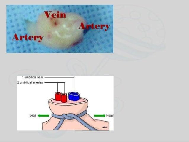 Specific Neonatal Situations Meconium-Stained Amniotic Fluid Apnea Diaphragmatic Hernia Bradycardia Prematurity Respirator...