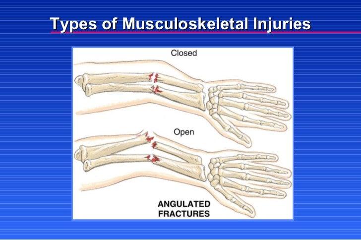 Multiple Musculoskeletal Trauma