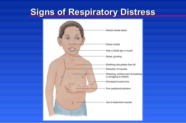 Irritability Sign Of Respiratory Distress 28