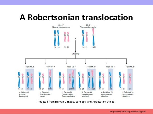 Robertsonian Translocation Trisomy 21 Balanced ...
