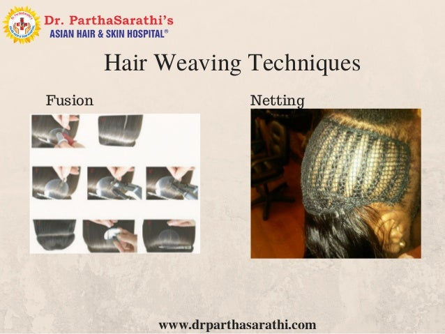 Hair weaving process in bangalore best hair fixing process in india 3 drparthasarathi hair weaving techniques nettingfusion pmusecretfo Gallery