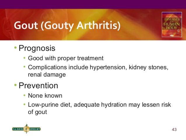 Penyakit Gout: Sakitnya Tak Terperi
