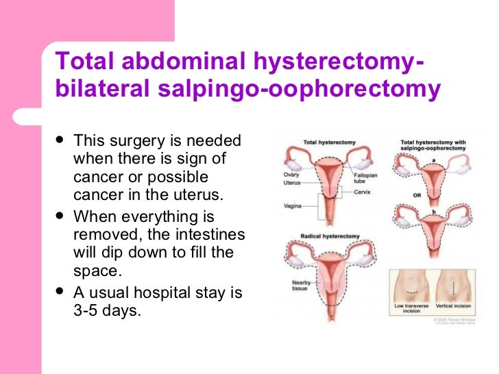 uterus and regular abdominal hysterectomy Hysterectomy is a surgery to remove a woman's uterus (her womb) the whole uterus is usually removed your doctor also may remove your fallopian tubes and ovaries.
