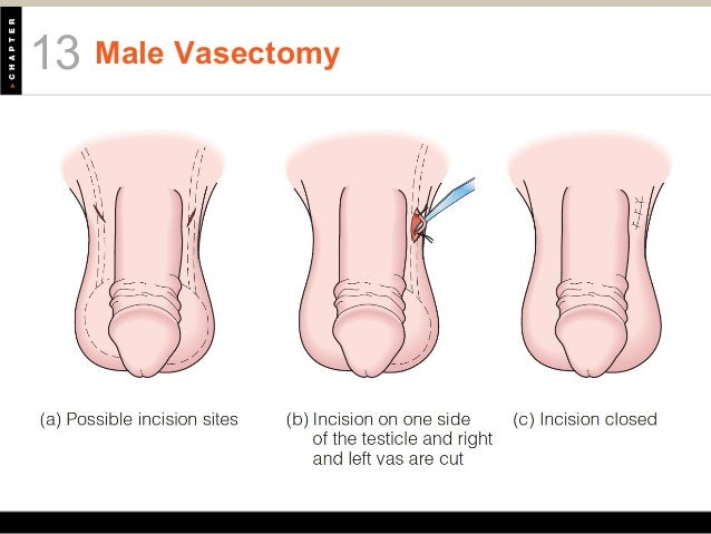 how to get pregnant after vasectomy naturally