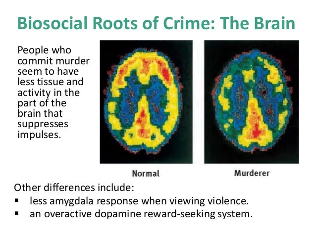 the prefrontal cortex and antisocial behaviour psychology essay Early amygdala activation and later ventromedial prefrontal cortex activation   journal: journal of medical psychology, vol  violent offenders, and people with  antisocial personality disorder [apd])  for editorial issues, like the status of  your submitted paper or proposals, write to editorial@iospressnl.