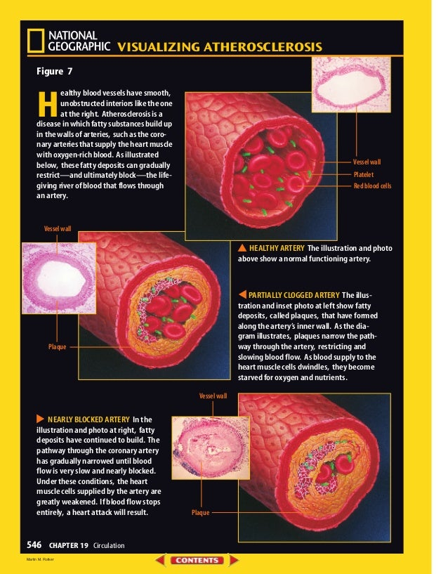 VISUALIZING ATHEROSCLEROSIS 546 CHAPTER 19 Circulation Figure 7 H ealthy blood vessels have smooth, unobstructed interiors...
