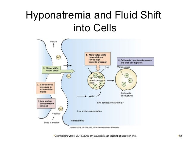 Hyponatremia Cell Pictures to Pin on Pinterest - PinsDaddy