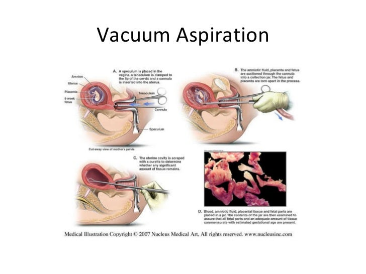 Aspiration abortion