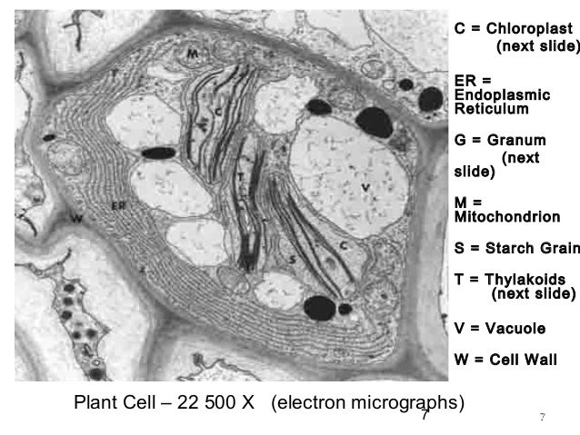 Plant Cell Electron Microscope Images - Micropedia