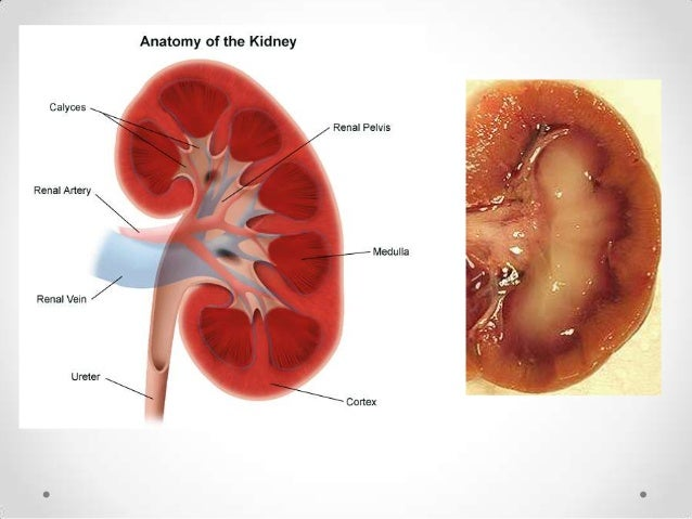 Kidney failure•   Urinary Tract Infection•   Kidney Stone•   Kidney Infection•   Diabetic Nephropathy•   Hypertension•   G...
