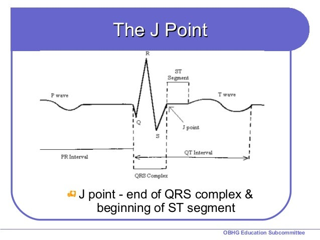 What does a line segment in math look like  qaanswerscom