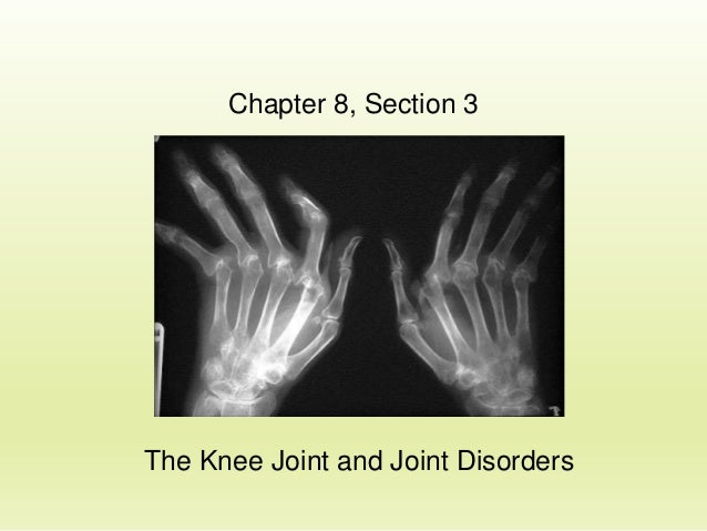 Chapter 8, Section 3  The Knee Joint and Joint Disorders