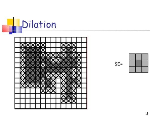 Dilation18