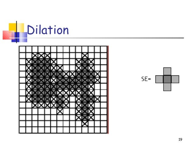 Dilation19