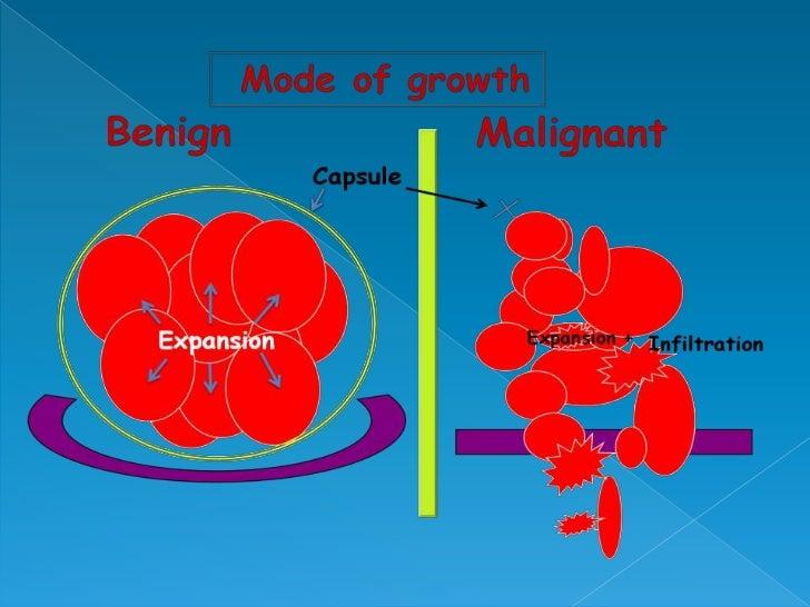 characteristics of benign and malignant neoplasms, Skeleton