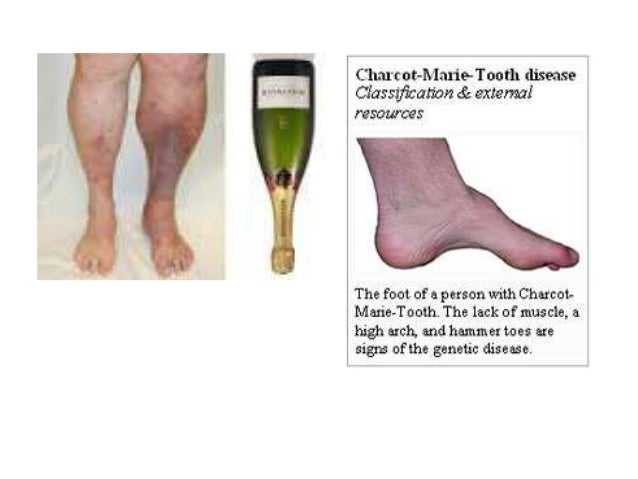 Charcot marie-tooth disease
