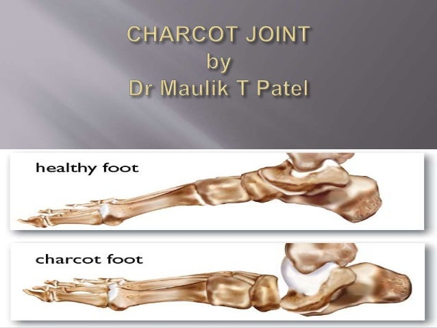 Charcot joint / Neuropathic Joint