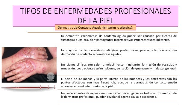 A atopicheskom la dermatitis público el tratamiento