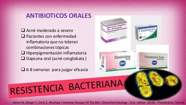Amoxicilina para el acné