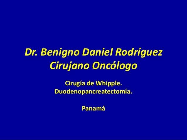 Dr. Benigno Daniel Rodríguez     Cirujano Oncólogo         Cirugía de Whipple.      Duodenopancreatectomía.              P...