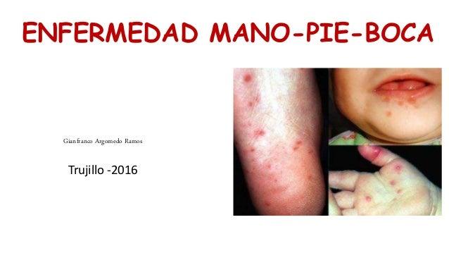 ENFERMEDAD MANO-PIE-BOCA Gianfranco Argomedo Ramos Trujillo -2016