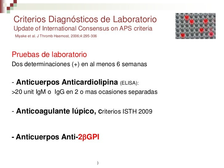 Sindrome antifosfolipidos