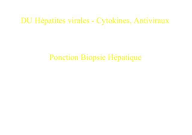 DU Hépatites virales - Cytokines, Antiviraux        Ponction Biopsie Hépatique             Dr Frédéric CHARLOTTE          ...