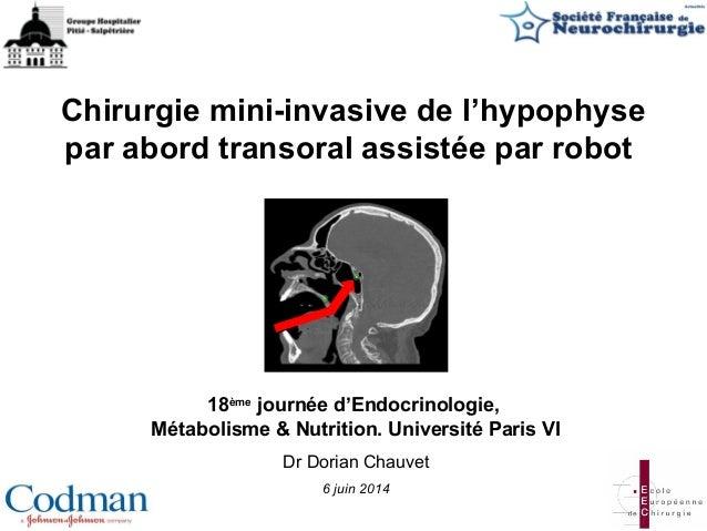 Chirurgie mini-invasive de l'hypophyse par abord transoral assistée par robot 18ème journée d'Endocrinologie, Métabolisme ...