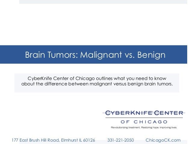 Brain Tumors: Malignant vs. Benign CyberKnife Center of Chicago outlines what you need to know about the difference betwee...