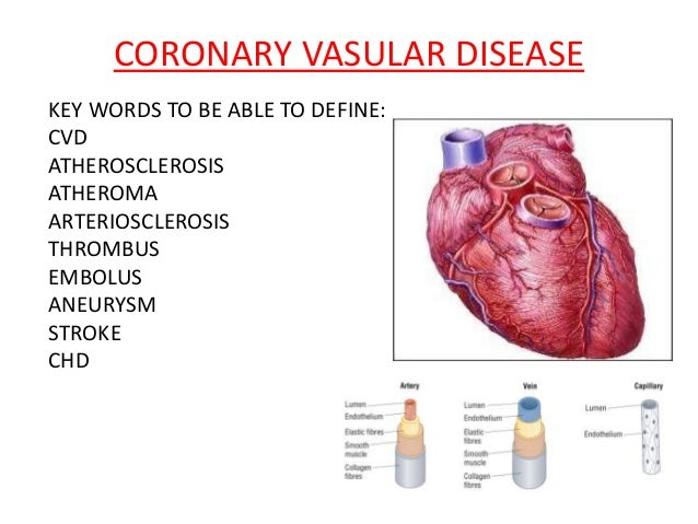 CORONARY VASULAR DISEASE KEY WORDS TO BE ABLE TO DEFINE: CVD ATHEROSCLEROSIS ATHEROMA ARTERIOSCLEROSIS THROMBUS EMBOLUS AN...