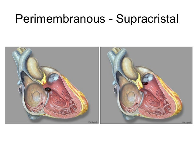 Approach to a Child with Congenital Heart Disese