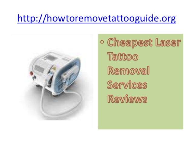 http://howtoremovetattooguide.org
