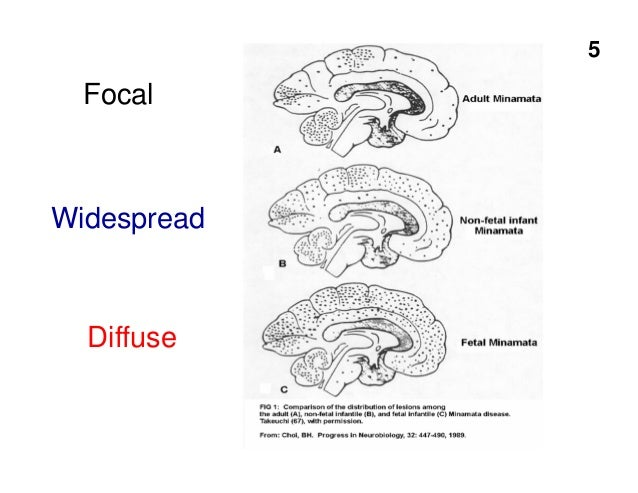 Dr. Philippe Grandjean on Chemical Brain Drain