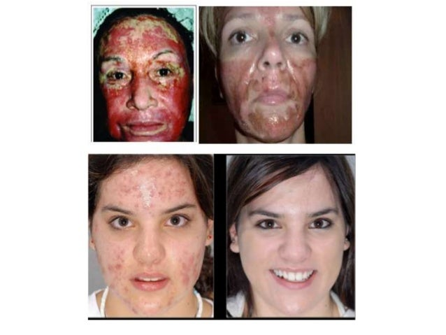 Hyperpigmentation • Chemical burns • Swelling • Redness • Allergic  Reactions; 23.