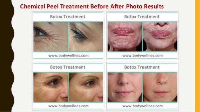 best facial peeling treatment