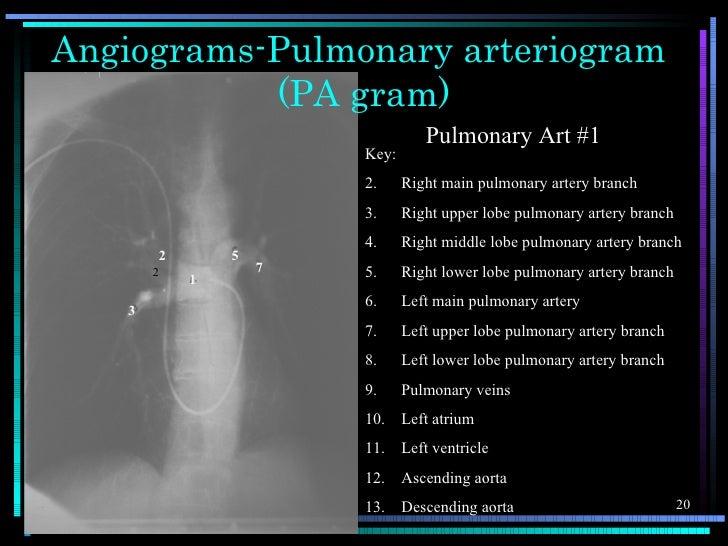 Angiograms-Pulmonary arteriogram           (PA gram)                                  Pulmonary Art #1                    ...
