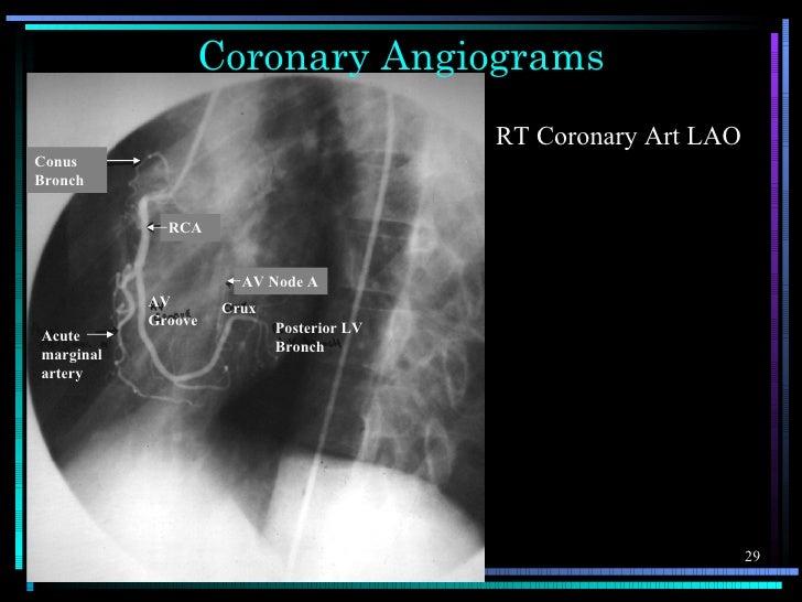 Coronary Angiograms                                          RT Coronary Art LAOConusBronch             RCA               ...