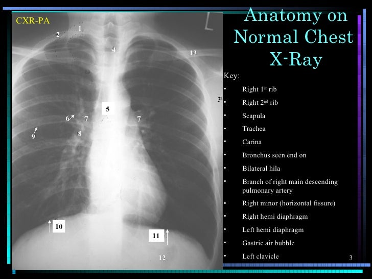 Chest X Ray Anatomy