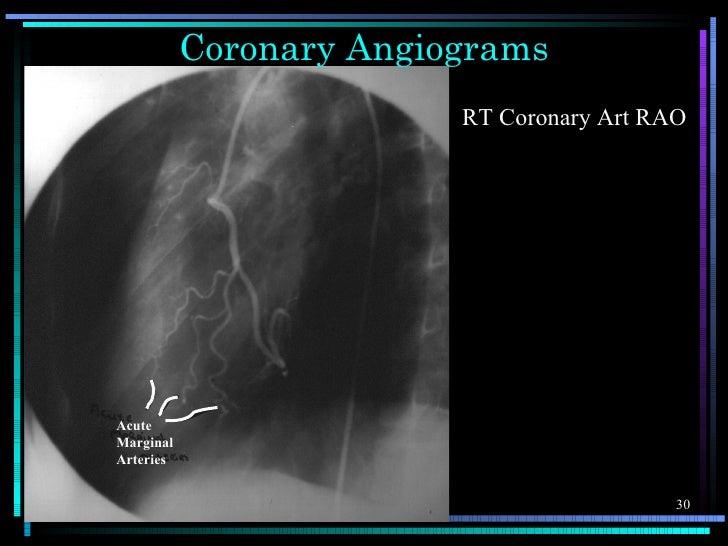 Coronary Angiograms                         RT Coronary Art RAOAcuteMarginalArteries                                      ...