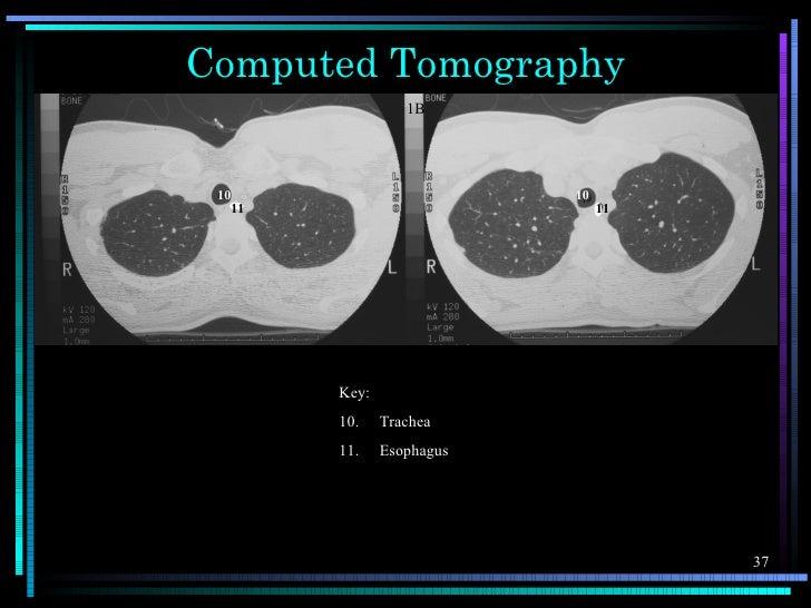Computed Tomography                  1B 10                        10   11                           11        Key:        ...