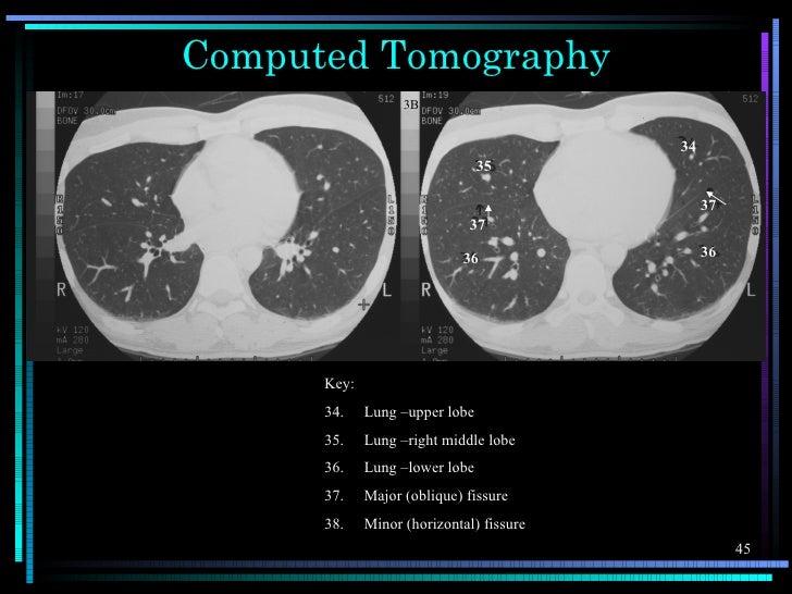 Computed Tomography                   3B                                          34                                35    ...